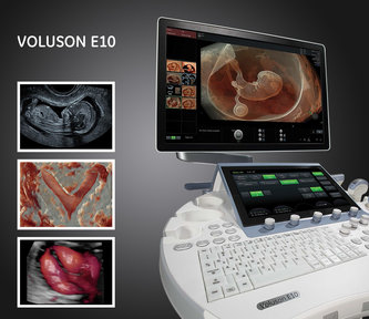 Ge Voluson E10 Ultrasound Machine For Sale Support From