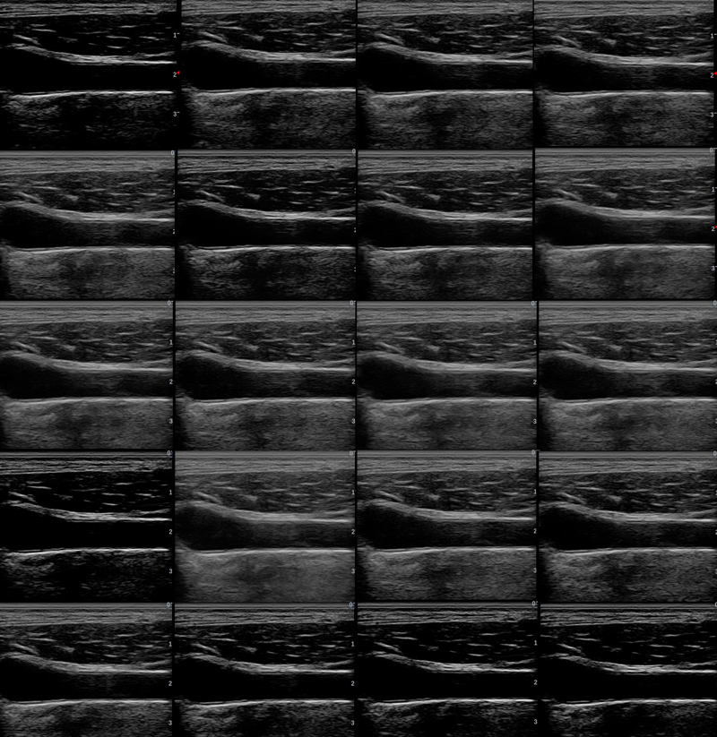 Example of how Dynamic Range can affect an ultrasound image