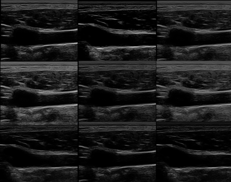 Effects of different Gray Map settings on an ultrasound machine