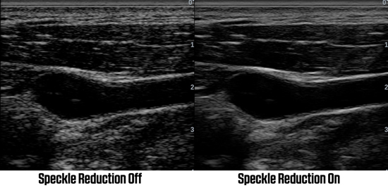 Example of Speckle Reduction Imaging to optimize an ultrasound image