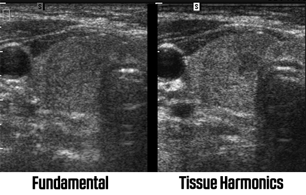 Fundamental and Tissue Harmonics Images from an ultrasound machine