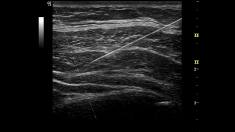 How to Buy an Ultrasound for Needle Guidance - Providian Medical