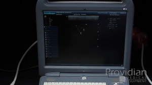 Measurements and calculations on the SonoScape S2 ultrasound machine