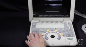 Chison Q5 Measurements and Annotations human and vet ultrasound