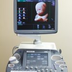 Refurbished GE Voluson e8 4D ultrasound machine HDlive