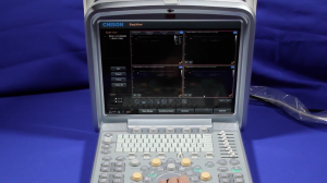Chison Q9 Ultrasound knobology training video
