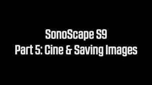 Cine and Saving Images on the SonoScape S9 portable ultrasound machine