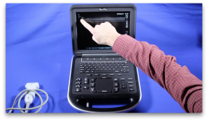 SonoSite Edge Ultrasound Training Part 1 Introduction