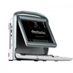 Chison ECO5 Portable Color Doppler Ultrasound Machine