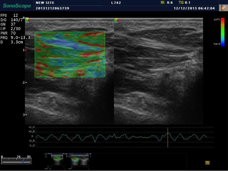 The Benefits Of Elastography In Ultrasound Providian Medical