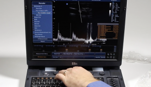Learn Doppler and M-Mode Imaging with the Chison EBit 60 Portable Ultrasound Training