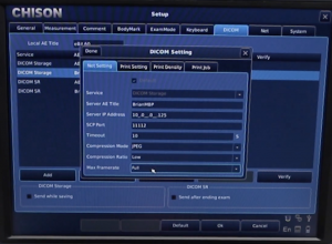 System Customization and DICOM setup on the Chison EBit 60