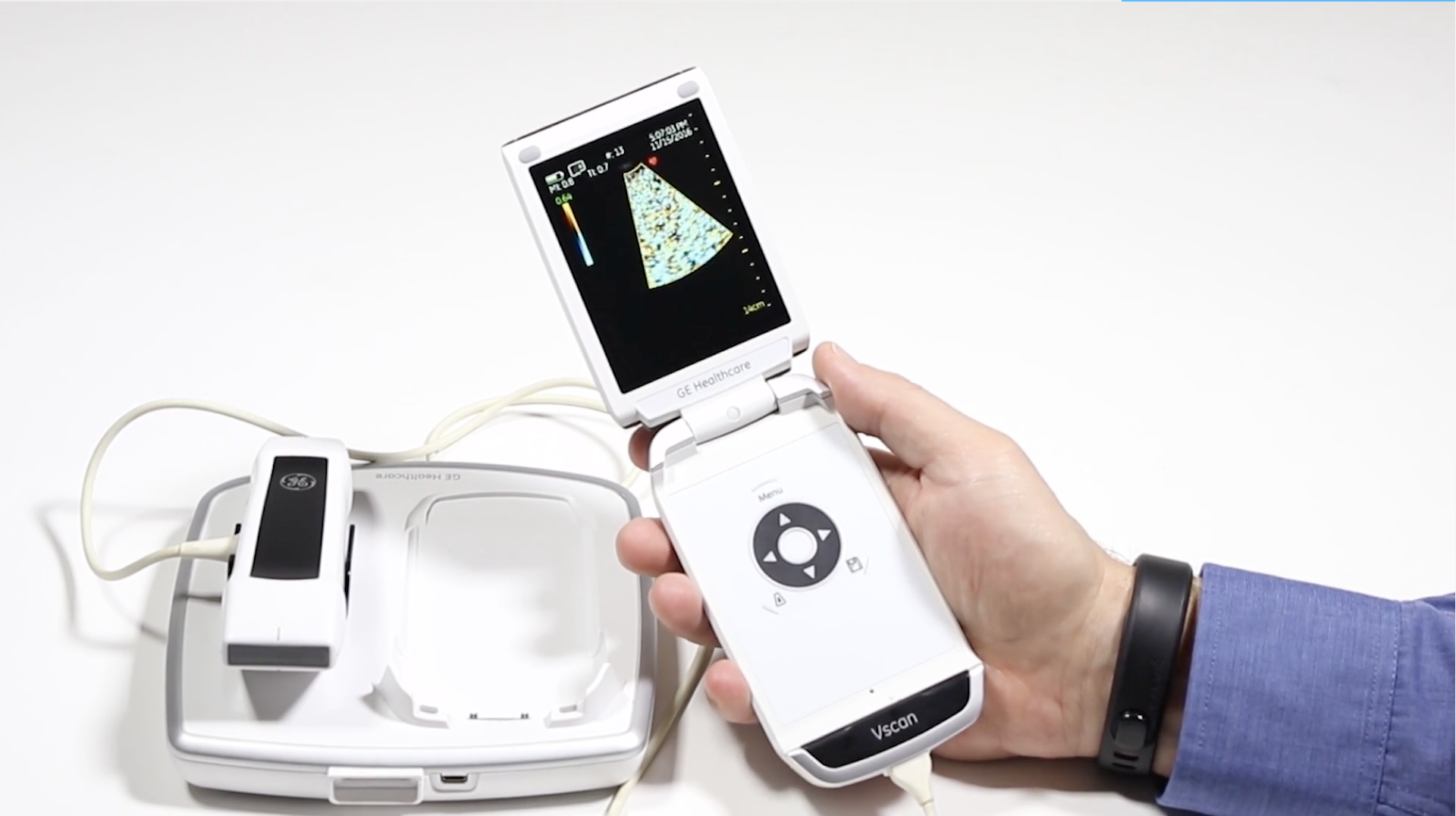 Learn how to scan and use the GE VSCan Dual Probe Ultrasound Machine