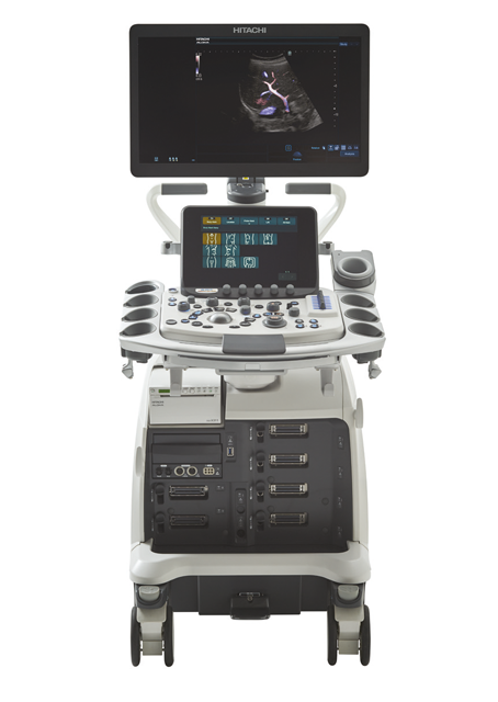 Used Hitachi Aloka Arietta 850 Ultrasound Machine