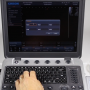 Measurements and Analysis Chison SonoBook 9 Training