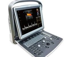 Chison ECO6 Ultrasound for sale