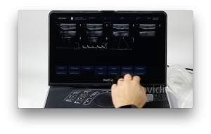 Ultrasound Training: GE Vivid iq Export Review and Reports